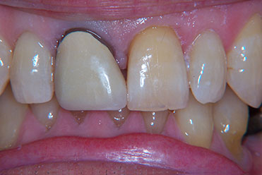 Smile Gallery - Before Dental Crowns and Bonding