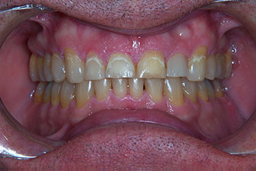 Smile Gallery - Before Tooth Bonding 3