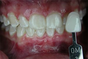 Smile Gallery - After Teeth Whitening Sample 4