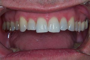 Smile Gallery - Before Cosmetic Recontouring